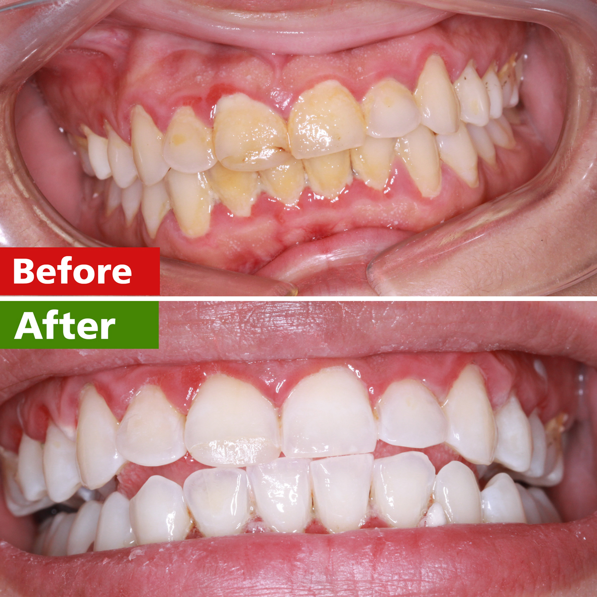 tooth whitening islamabad