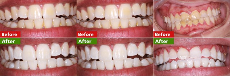 Best Teeth whitening Clinic in Islamabad