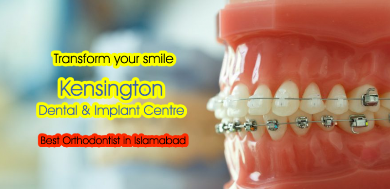 Best Orthodontist in Islamabad