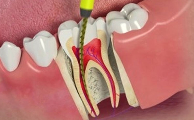 Root canals at KDiC