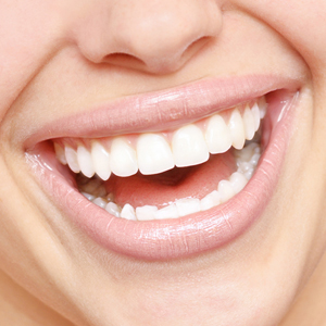 Tooth Whitening Services in Islamabad